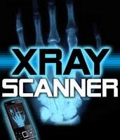 Binbit Xray Scanner