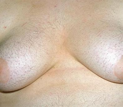 mujeres con mucho pelos: