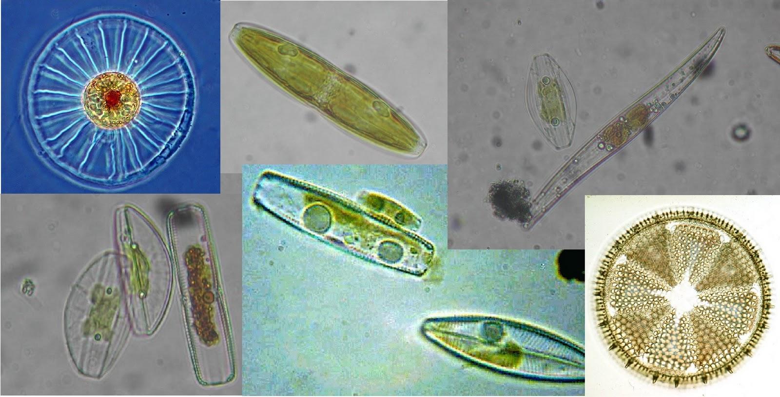 http://3.bp.blogspot.com/_BwlbMaa50jo/TKkGIMSqj0I/AAAAAAAAHeY/2vdUcVL8SFs/s1600/diatoms,%252525252Bseveral%252525252Bspecies.jpg