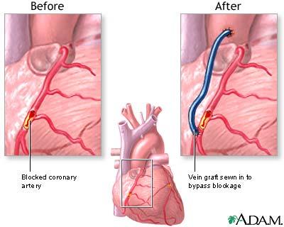 Cardiology: Bypass Surgery (CABG) - MDNotes