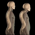 Apa itu Osteoporosis dan Apa Penyebabnya