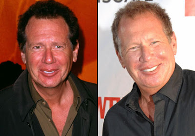 Garry Shandling Plastic Surgery Photos