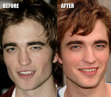 Hakeekat.com : [Celebrities Before And After Plastic Surgery] Plastic