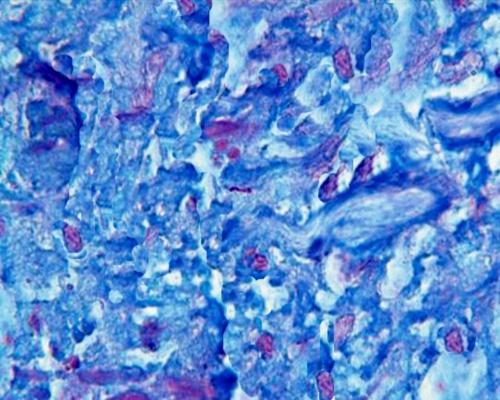 Dermatopathology Cases July 2010