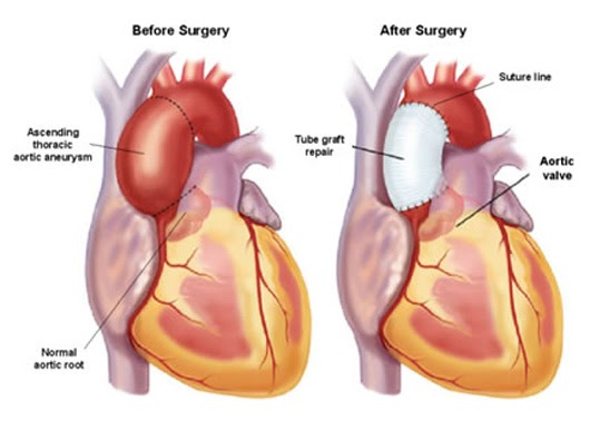 what is an ascending aortic aneurysm [in layman's terms] and how, Human Body