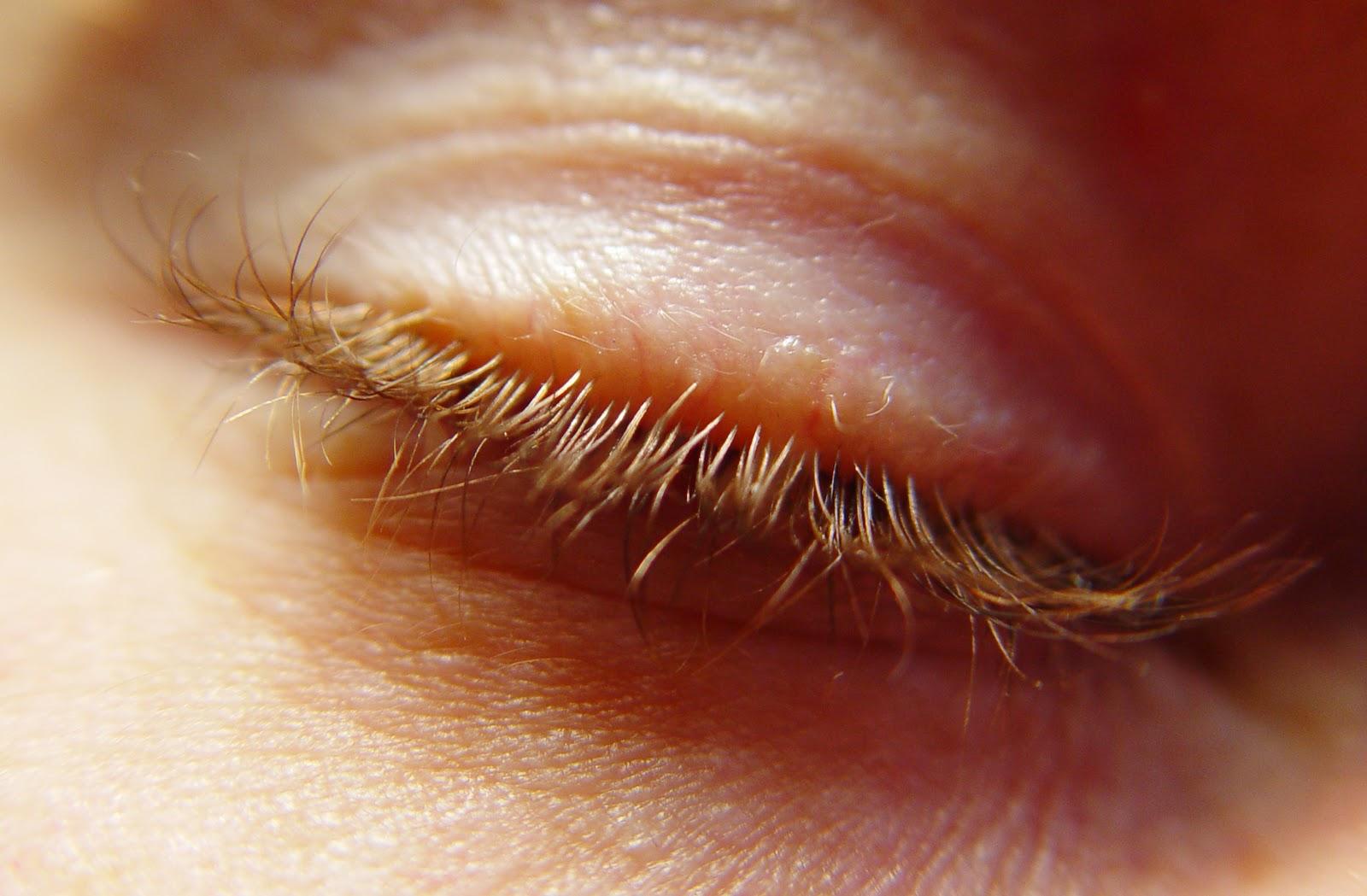 dizziness headache blurred vision fainting sleeplessness