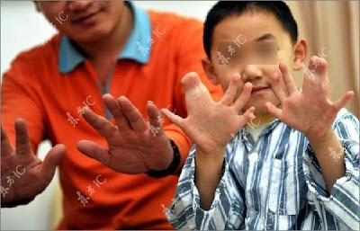  Chinese boy has 34 fingers