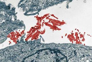 El virus A/H1N1 ya no es predominante