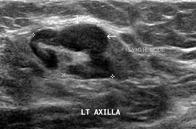 dimensional) ultrasound image shown above, with the cancerous ...