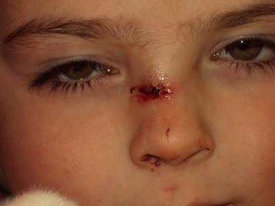 Dissolvable Stitches