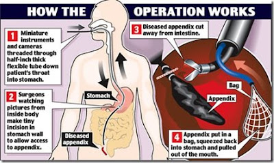image showing appendectomy through man mouth