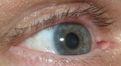 Mit øje
