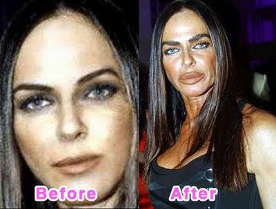 kim kardashian plastic surgery face. hair Kim Kardashian plastic