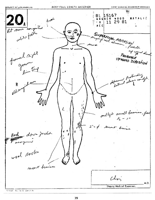 Natalie-Wood\'s-unsolved-death: Full autopsy is shown in THE GOSSIP ...