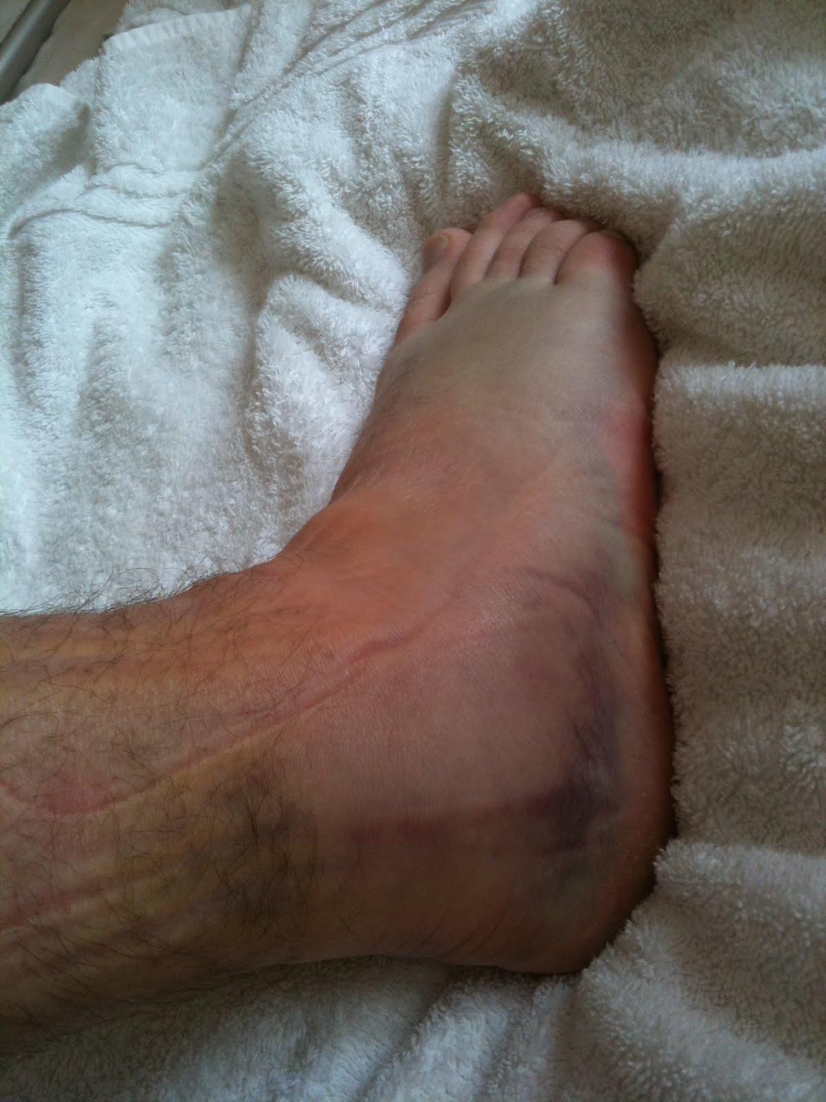 prednisone edema-ankles
