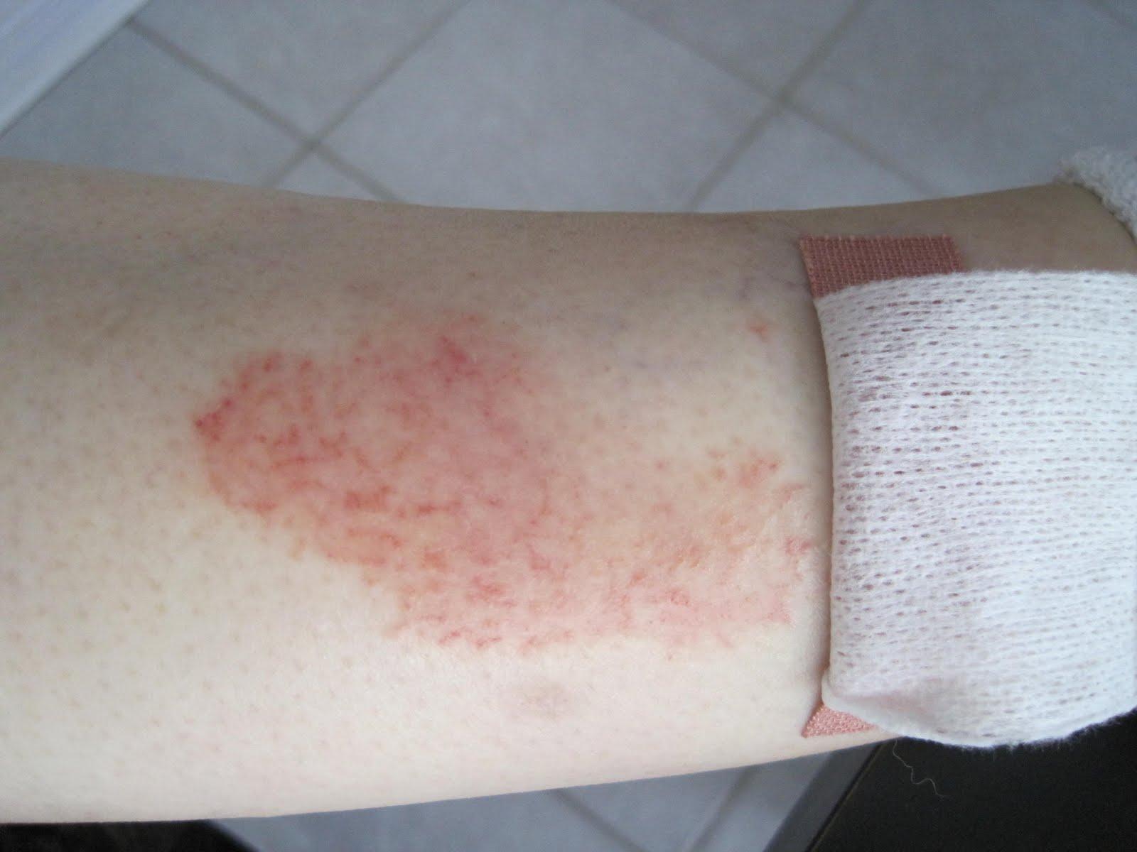 eczema on shins - photo #18