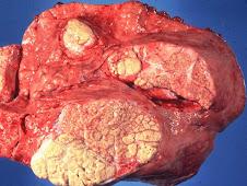 Necrosis caseosa (pulmón)
