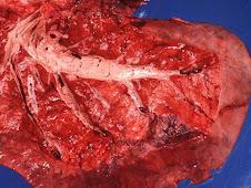 Neumonía intersticial (equino, pulmón abierto)