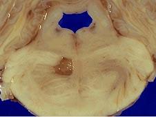 Necrosis licuefactiva en SNC