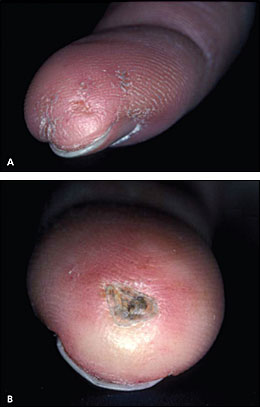Finger Ulcers From Raynauds http://lojosclero.blogspot.com/2010/05/digital-ulcer-digital-sympathectamy.html