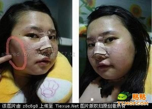 operasi plastik orang korea