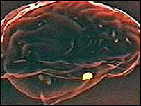 Médicos tratam problema raro em cérebro de bebê com 'supercola'