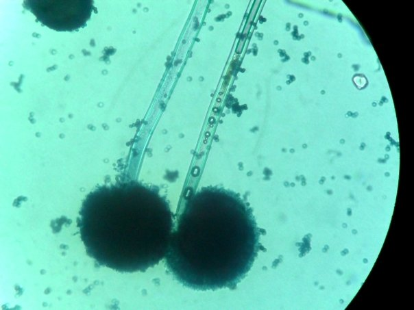 Ciencias de la salud micro instrumen salud - El moho es un hongo ...