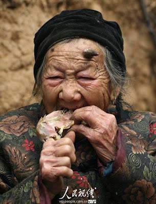 anciana-crece-cuernos-negro-protuberancia-china-zhang-ruifang