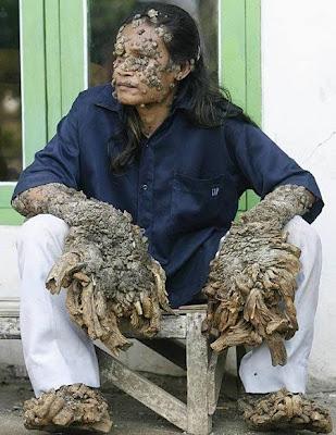 Human Pappiloma Virus Dede Koswara Tree Man