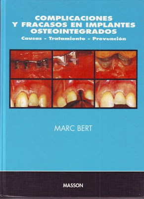 IMPLANTOLOGIA Implantes2