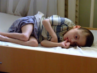An orphan at Saray Orphanage, Azerbaijan