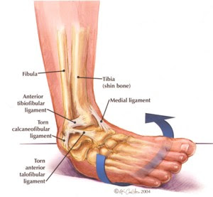 Ironman Past And Futurelifestyle Sprained Ankle