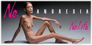 Isabelle Caro, Struggled Against Anorexia