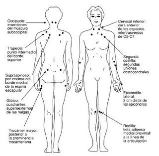 Terapia cráneo-sacra y fibromialgia