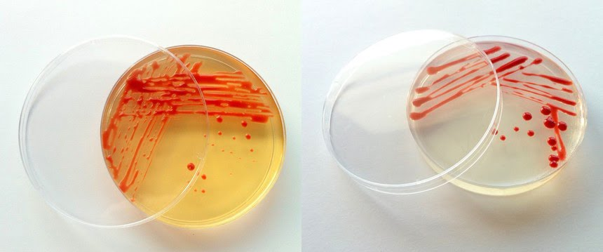 Cleaner science and petri dish fun