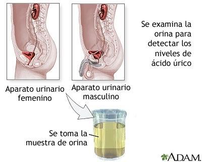 farmacos anti acido urico acido urico garbanzos que comer para mejorar la gota