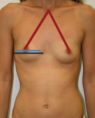 Medidas mamarias para senos caídos
