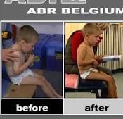 ABR grupa na facebook