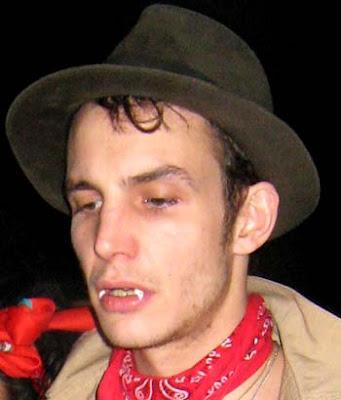 Blake Fielder Civil Teeth