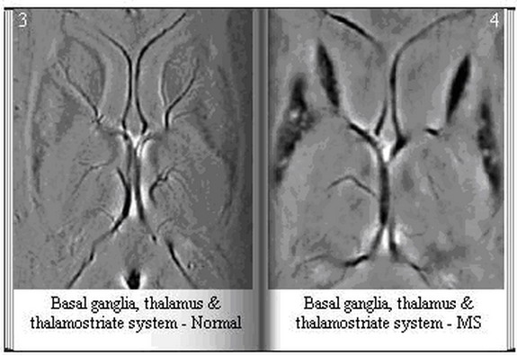 Basal Ganglia, Thalamus & Thalamostriate System