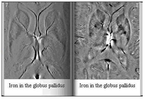 Iron in the Globus Pallidus