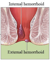 What are the symptoms of hemorrhoids?