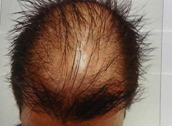 La máscara a los cabellos para el crecimiento