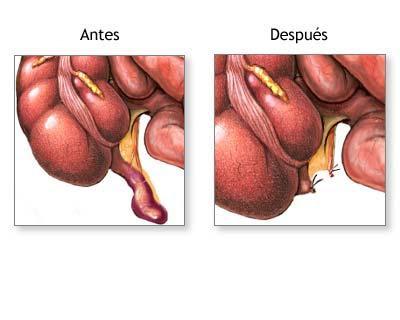 do appendices go dissertation