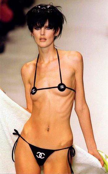 Анорексичка голая фото