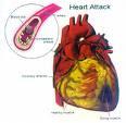 lemah jantung