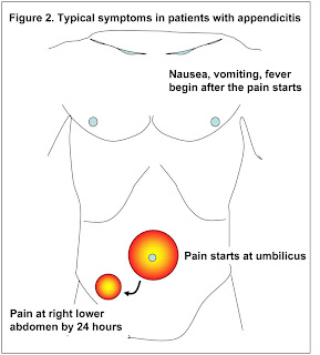 radiologyspirit: appendicitis, Human Body