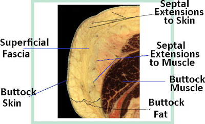superficial fascial system of the buttock