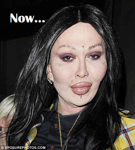 Pete Burns before and after picture plastic surgery