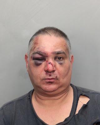 Brutal paliza en Miami a un bloguero pro-cubano Varela+foto